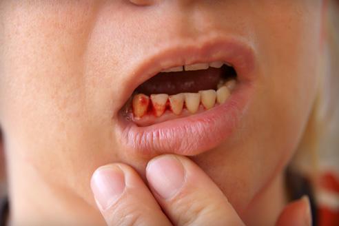 fájó fájdalom a száj ízületében)
